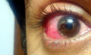Image of human eye infected with Conjunctivitis