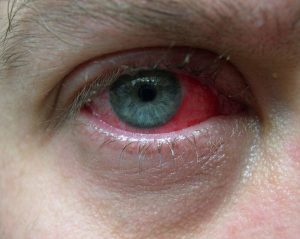 Picture of human infected with Conjunctivitis